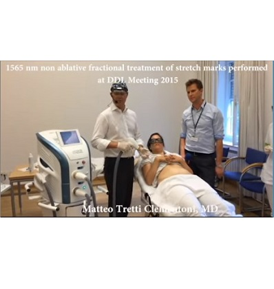 1565 nm non ablative fractional treatment of stretch marks performed at …